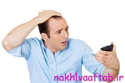 یکی از عوامل ریزش مو بروز شوره روی سر است