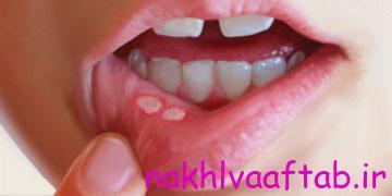 آفت یک بیماری شایع است که ضایعات دردناک در دهان، زبان و لثه به بار می آورد