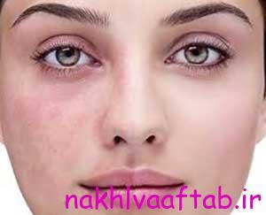 علت بروز لک های پوستی