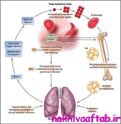 پیشگیری از آمبولی چربی ,علائم  آمبولی چربی