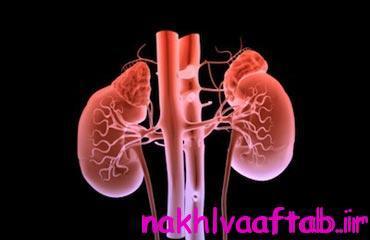 بیماری کلیوی, علائم بیماری کلیوی, نشانه های بیماری کلیوی