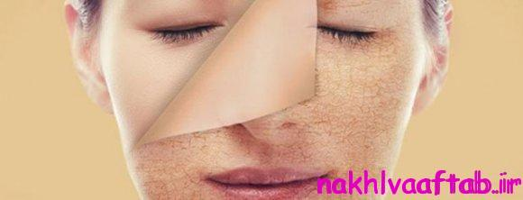 چطور پوستمان را تا عید زیباتر کنیم؟