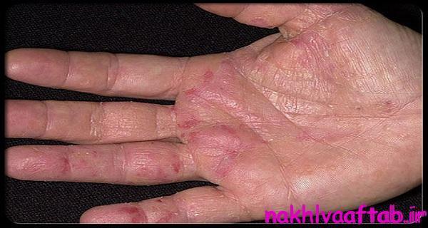 این علایم در دست ها بیانگر سرطان است