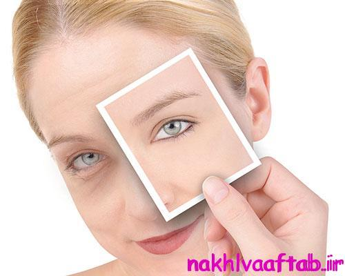 استرس جوانی چهره را میگیرد + درمان