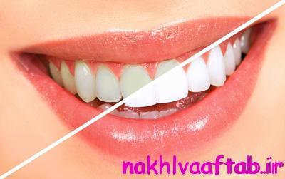 سفید کردن دندان ها در خانه